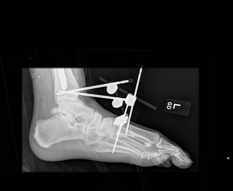 xray of Beau's foot