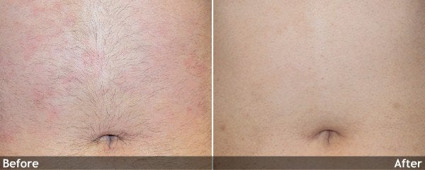 Hair-Removal-Abdomen