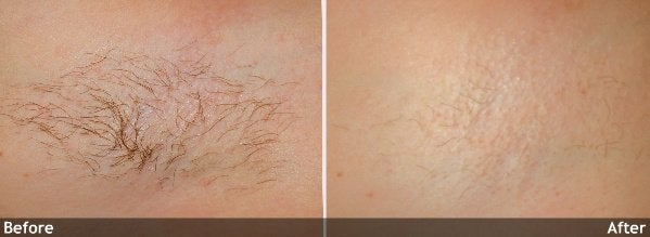 Hair-Removal-axilla