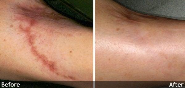 skin folds and wrinkles