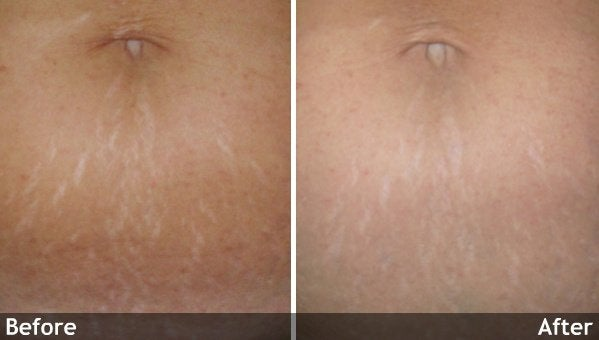 Skin Folds And Wrinkles Conditions We Treat Boston