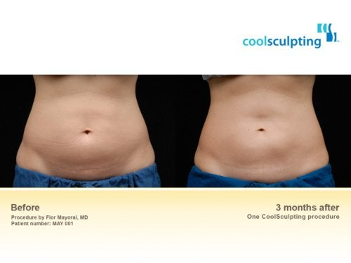 Unwanted Body Fat Conditions We Treat Boston Medical
