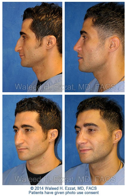 ezzat_male-rhinoplasty