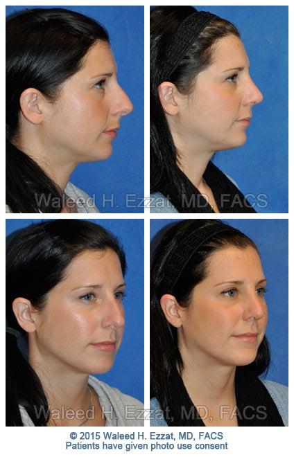 Nose Job For Women Nose Job Rhinoplasty Boston Medical Center