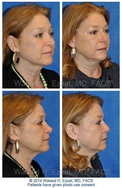 ezzat_female-revision-rhinoplasty