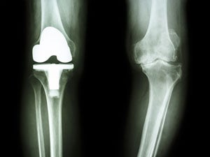 knee-xray-orthopedic-surgery
