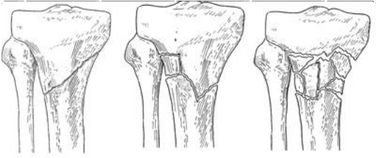 Shinbone Fracture