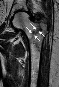 Broken Hip MRI