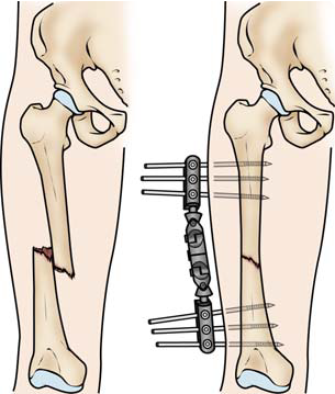 Femur Shaft Fracture External Fixation
