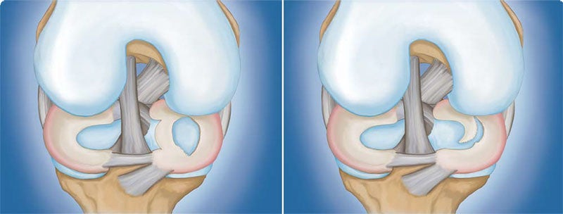 Meniscus Tear: (Left) Bucket handle tear. (Right) Flap tear