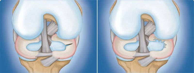 Meniscus Tear: (Left) Radial tear. (Right) Degenerative tear.
