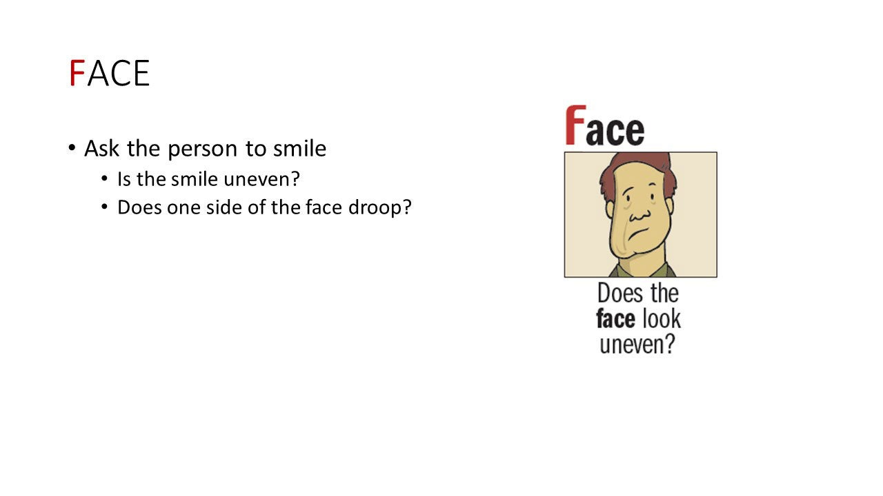Face: Ask the person to smile. Is the smile uneven? Does one side of the face droop?
