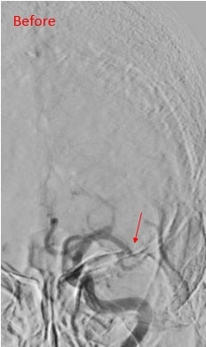 Left middle cerebral artery occluded (arrow)