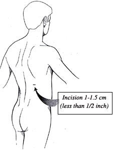 Illustration of PNCL surgery incision