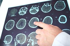 Concussion ct scan