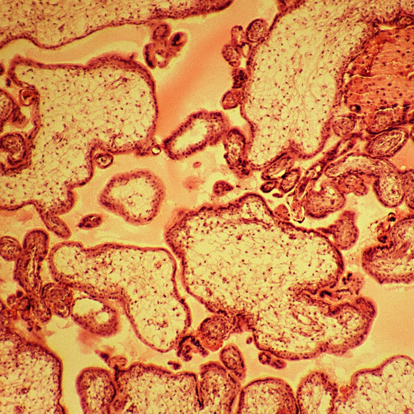microscopic view of placental tissue